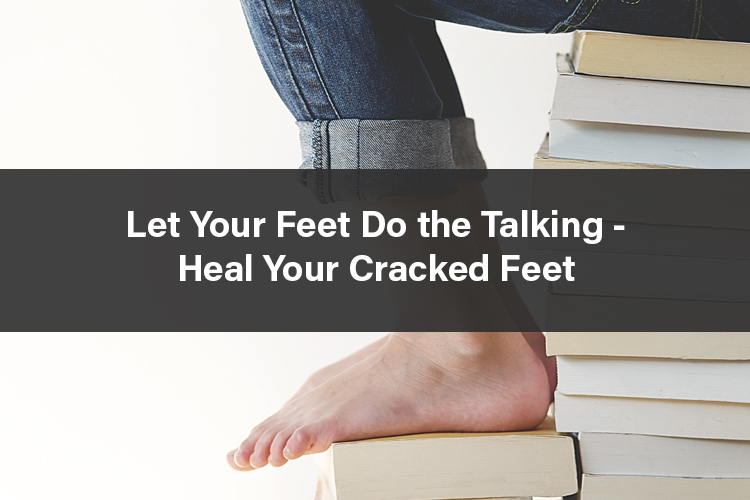 Let Your Feet Do the Talking – Heal Your Cracked Feet